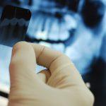 Какво трябва да знаем, когато лекарят по дентална медицина назначи РЕНТГЕНОВА СНИМКА?