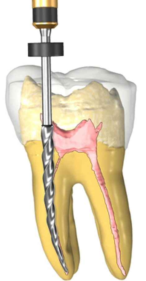 root-canal-470