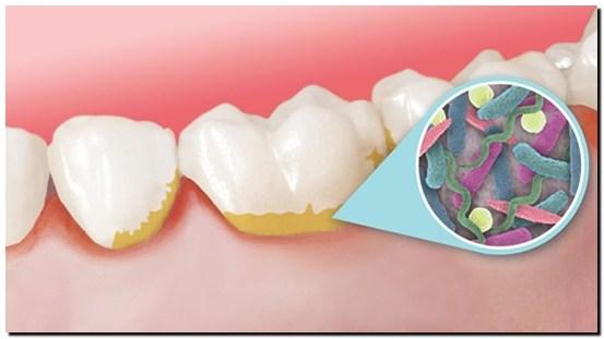 Cara-Mudah-Menghilangkan-Plak-Pada-Gigi