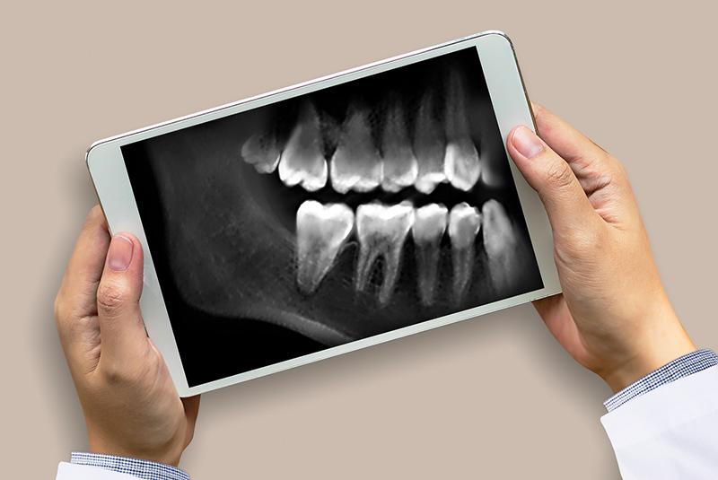 dental-x-rays-on-tablet