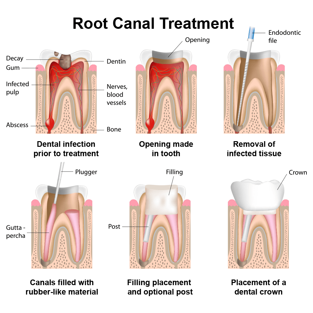Root_Canal_Treatment_2_a